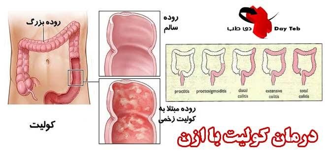 درمان بیماری روده با ازن درمان کولیت با ازن درمان کورنید با ازن درمان زخم روده با ازندرمان کولیت و عفونت و التهاب روده با ازن یا اکسیژن فعال
