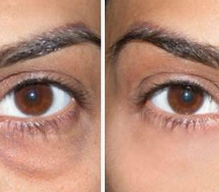 درمان تیرگی و سیاهی و گودی زیر چشم ژل درمان سیاهی زیر چشم